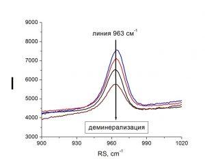 Снижение интенсивности рамановской линии гидроксиапатитов (963 см-1) при развитии кариеса за счет падения степени деминерализации зуба